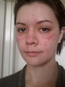 MCI allergy
